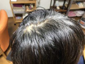 石臼挽きヘナW染め ビフォー 白髪